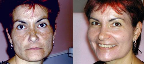 La glicerina pigmentary individua la persona