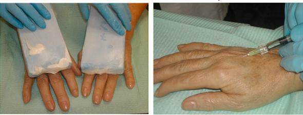 Il pigmentary nota a una malattia di ghiandole surrenali